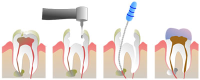 Root Canal Treatments in Thornhill